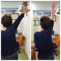 肩の可動域制限